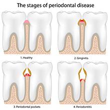 parodontologija_01